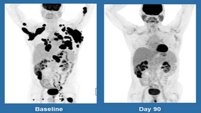 These scans show a 62-year-old man with non-Hodgkin lymphoma, at left in December 2015, and three months after treatment with Kite Pharma's experimental gene therapy.