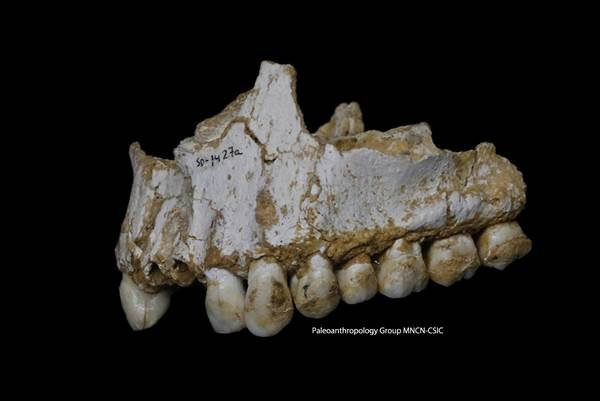 A handout photo released on March 7, 2017 by Paleoanthropology Group MNCN-CSIC shows the upper jaw of Neanderthal El Sidron 1, found in what is today Spain, with a dental calculus deposit visible on the rear molar. HANDOUT / AFP - Getty Images