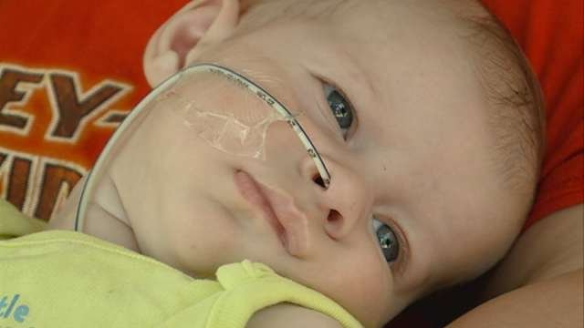A Waterloo baby suffering from a hole in the heart is getting support from the community to help pay for medical expenses.
