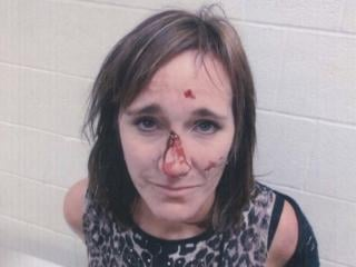 Angela Hafner's injuries after alleged excessive force was used to arrest her.