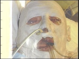 Rick Sinnwell shortly after the chemical explosion that burned 80% of his body