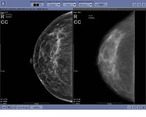 Image on the left is digital mammography. Image on the right is traditional mammography. Photo courtesy: Allen Hospital
